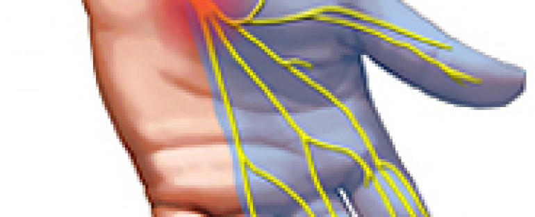 Hand Pain and Numbness: Carpal Tunnel or Neck Problem?