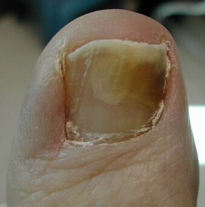 Nail Fungus Asian Health Secrets